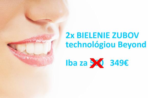Zlava na bielenie zubov